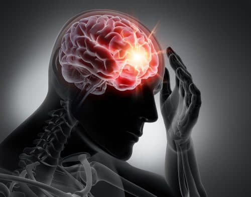 These Factors Will Determine the Long-Term Cost of a Traumatic Brain Injury